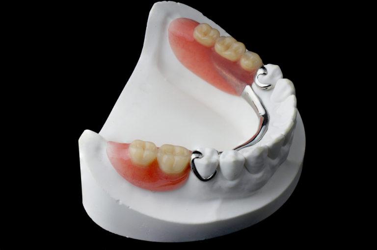 Partial Dentures