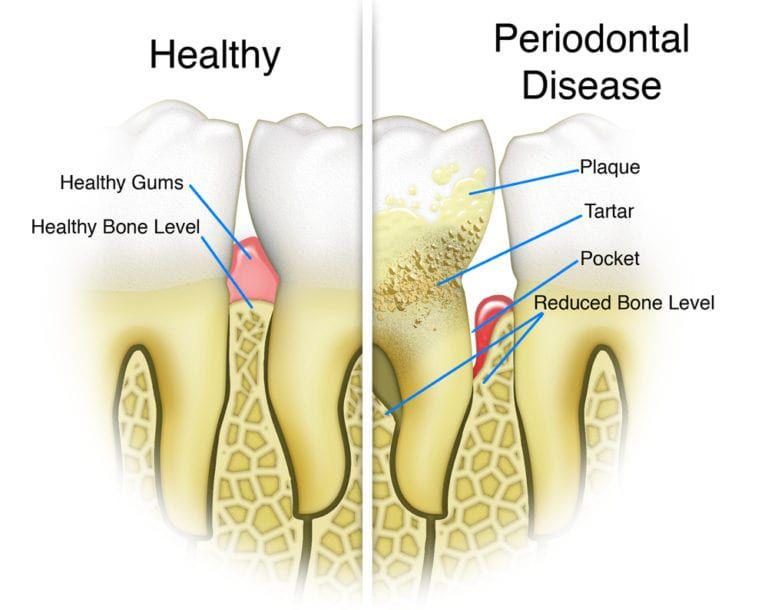 What is Periodontal Disease?