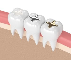 Composite vs amalgam fillings 3d model