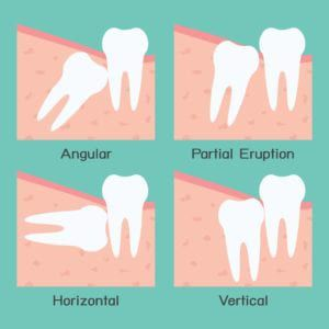 Diagram showing the four types of impaction: angular, partial, horizontal, and vertical