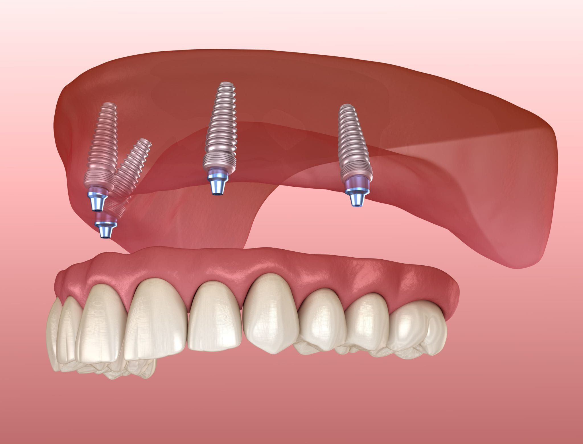 Dental Implants & Implant Fixed Dentures - Tulsa Precision Dental