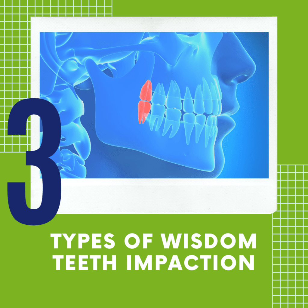 "title banner for ""3 types of wisdom teeth extraction"""