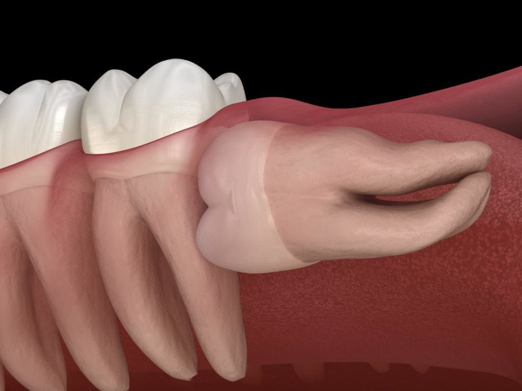 Horizontal impacted wisdom tooth