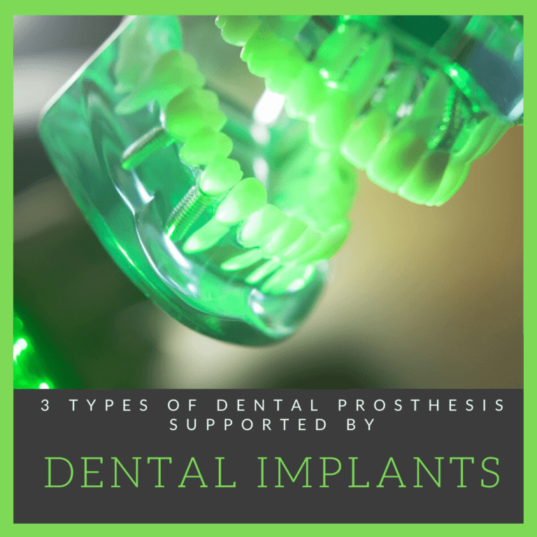 3 Dental Prosthesis Supported by Dental Implants