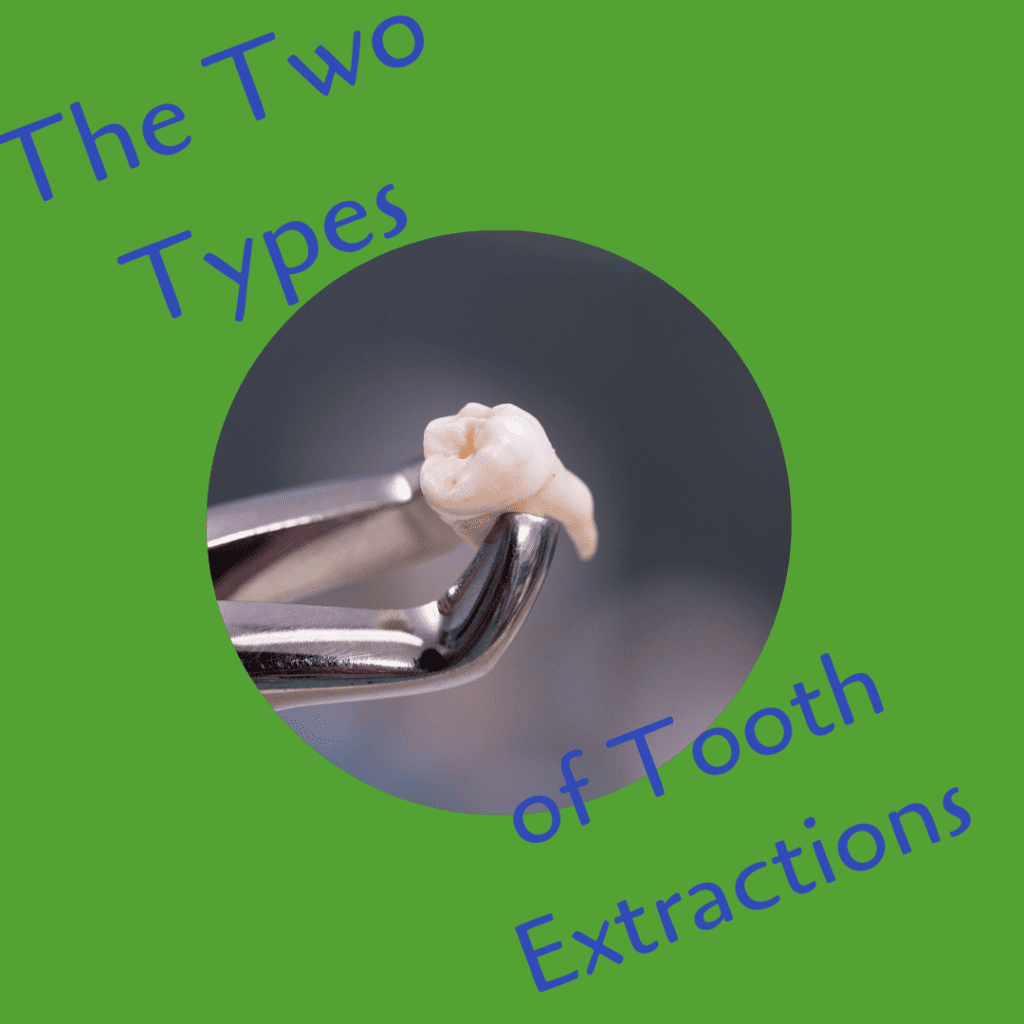 The 2 Types of Tooth Extractions