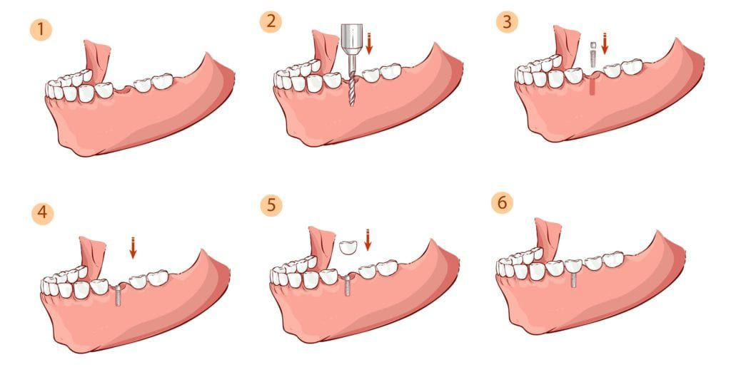 the six steps of the dental implant procedure