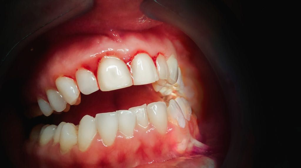 bloody, inflamed gums