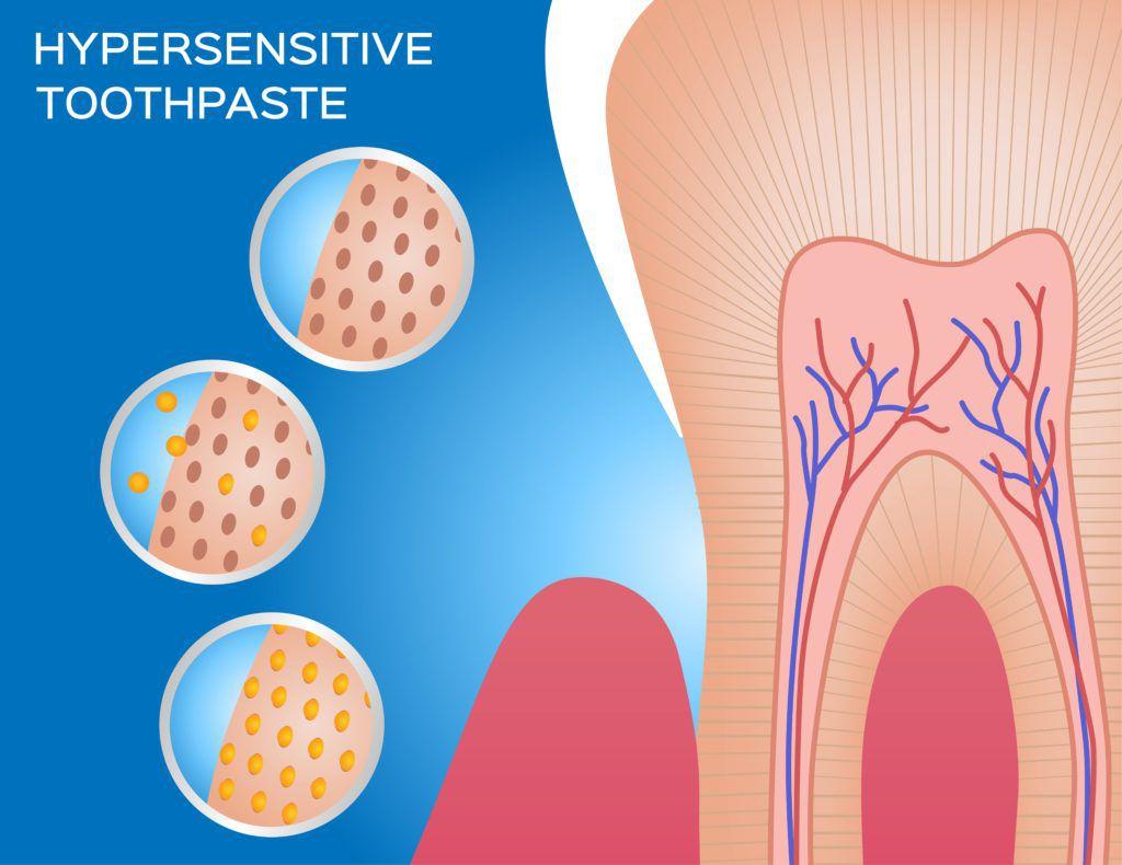 hypersensitive toothpaste