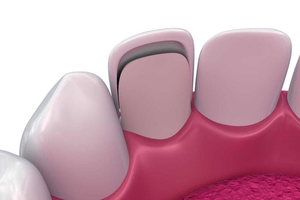 backside of dental veneer shown on tooth