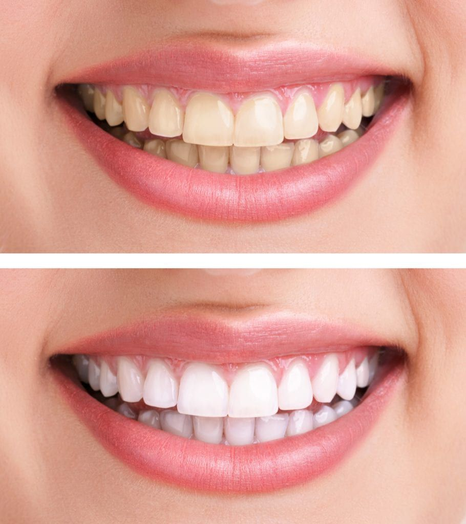 before and after teeth whitening procedure
