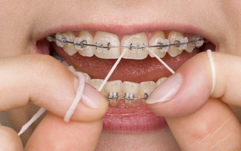Woman with braces flossing and smiling