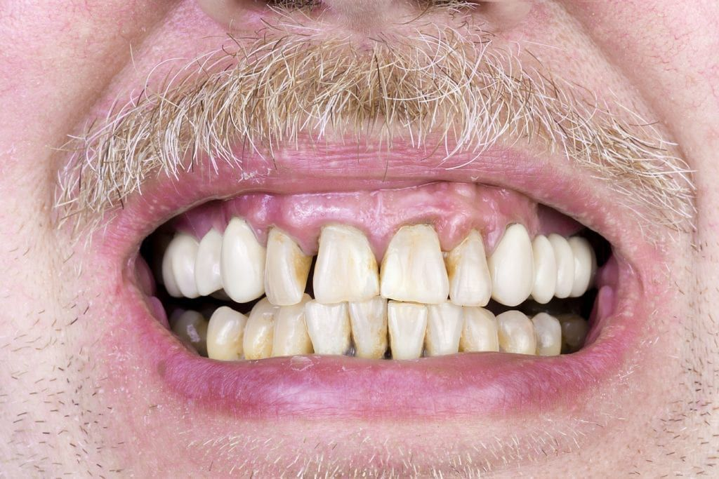man smiling and showing teeth that have not had proper hygiene