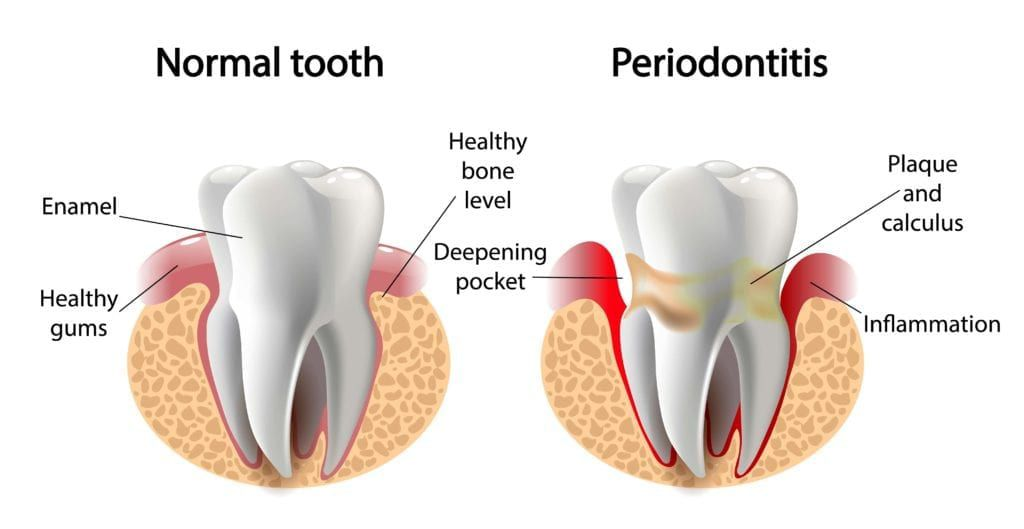 normal tooth vs. tooth surrounding by gums affected by periodontitis